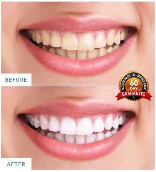 Cleaner smile Whitening kits reviews 2021.jpeg